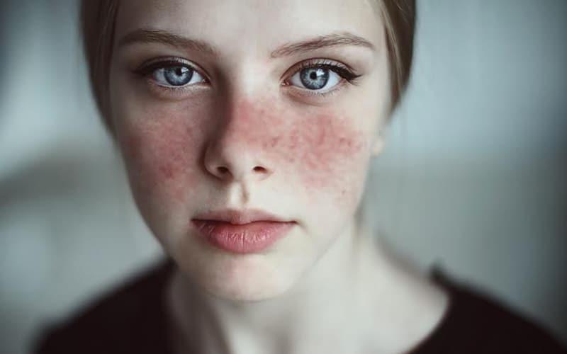Au Canada, le lupus touche environ 1 personne sur 2000.
